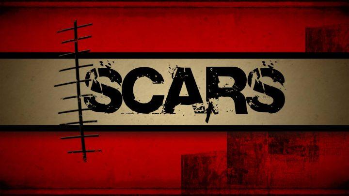 scars-art-mtn1